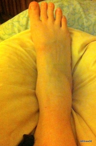 hurt ankle